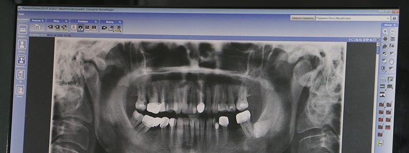 Панорамный снимок зубов и челюсти (PLANMECA) на экране монитора