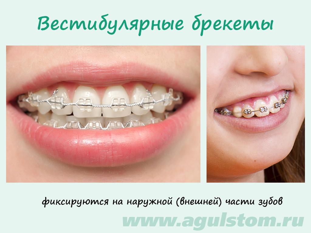 Как сделать брекет для зубов 21
